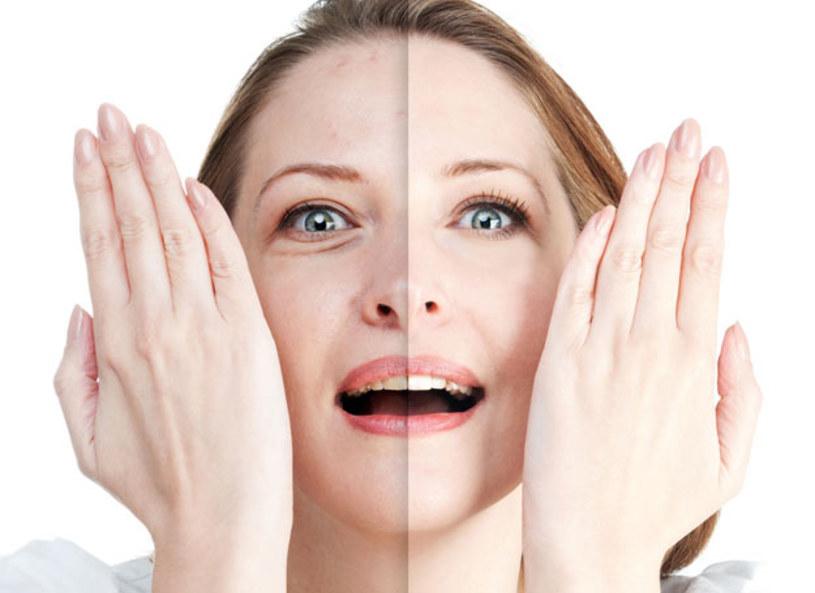 """Wiele osób boryka się z problemem tzw. """"worków pod oczami"""", bądź zaczerwienieniem gałki ocznej. Najczęstszym powodem jest zmęczenie. - Otwierając lodówkę możemy mieć produkty, którymi zniwelujemy zapuchnięte, zasiniałe czy zaczerwienione oczy - mówiła kosmetyczka Anna Lohmann. Proste i skuteczne zabiegi można wykonać samemu w domu, bez konieczności kupna drogich kremów."""