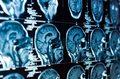 Prosty test moczu uratuje żołnierzy z urazem mózgu