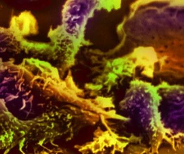 Komórki nowotworowe są zaraźliwe