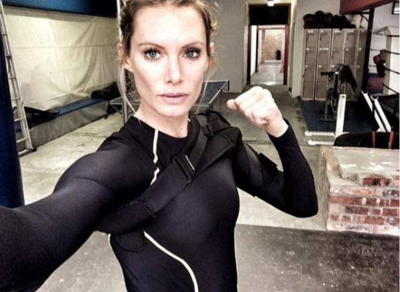 """Olivia Jackson, kaskaderka, która miała wypadek na planie ostatniej części """"Resident Evil"""", będzie miała amputowaną rękę."""