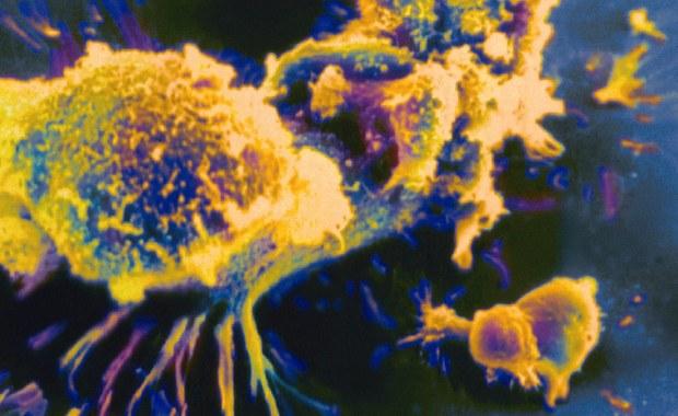 Wszystko wskazuje na to, że została wynaleziona nowa, rewolucyjna metoda, która może być wykorzystywana w leczeniu niektórych typów nowotworów. Ratunkiem dla chorych m.in. na białaczkę może być genetycznie modyfikowana krew.