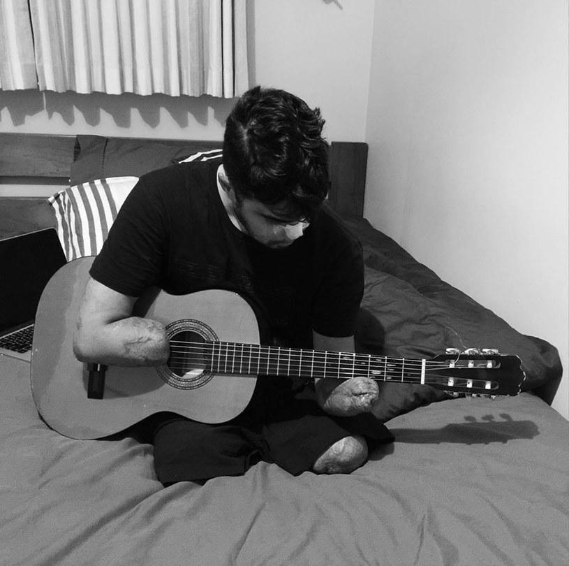 To prawdziwa sensacja. W wyniku choroby straciły wszystkie kończyny, a mimo to ponownie nauczył się grać na gitarze.