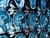 Szokująca teoria dotycząca leczenia nowotworów