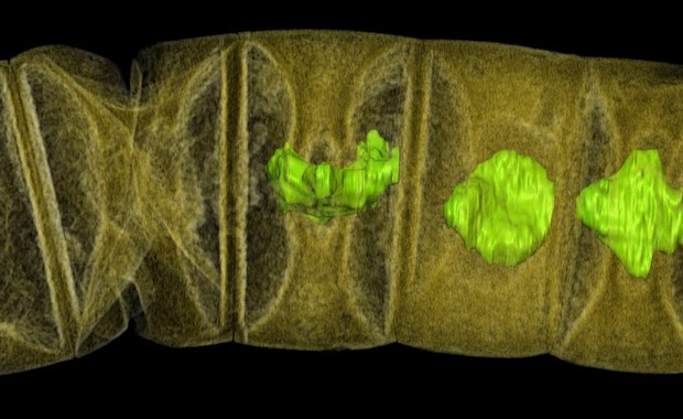 """Naukowcy Swedish Museum of Natural History kolejny raz cofnęli czas. Odkryli szczątki glonów sprzed 1,6 miliarda lat. Ich praca, opublikowana na łamach czasopisma """"PLOS Biology"""" wskazuje, że złożone, wielokomórkowe organizmy pojawiły się na Ziemi się znacznie wcześniej, niż myśleliśmy. To kolejne w ostatnich miesiącach odkrycie, które przesuwa daty początków życia. Nie dalej jak w październiku badacze z Instytutu Paleobiologii PAN w Warszawie ogłosili na łamach czasopisma """"Precambrian Research"""" odkrycie szczątków organizmów jądrowych sprzed ponad 2,7 miliardów lat, miliard lat wcześniejszych, niż najstarsze znane do tej pory. Teraz mówimy jednak o życiu znacznie bardziej zorganizowanym."""