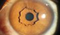 Co to za niezwykła struktura w oku?