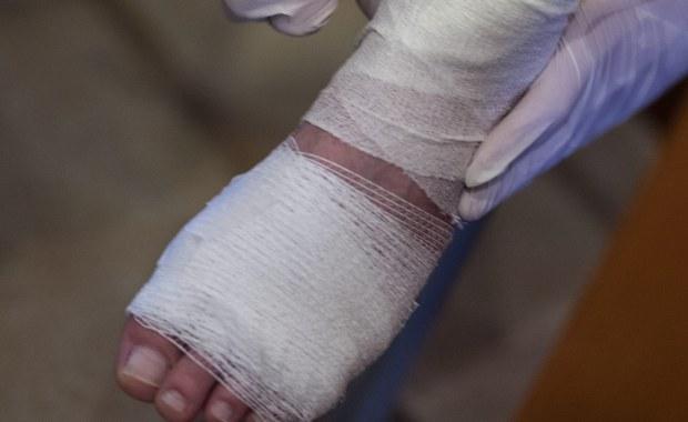 33-letni Francuz, który uległ wypadkowi i miał poparzone 95 procent ciała, jest już bliski wyzdrowienia, mimo tego, że lekarze określali jego stan jako krytyczny. Mężczyzna przeszedł serię przeszczepów skóry, a dawcą był jego brat bliźniak.