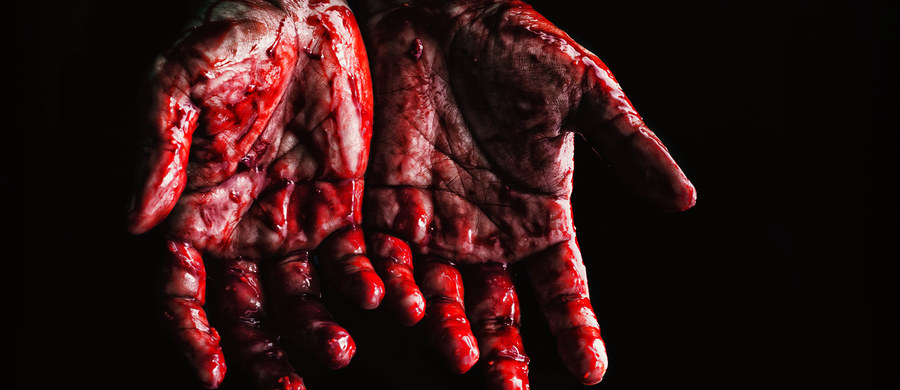 """""""Odchylanie głowy do tyłu przy intensywnym krwawieniu nie jest dobrym pomysłem"""" - mówi dr Joanna Zdziarska, hematolog ze Szpitala Uniwersyteckiego w Krakowie. Nasza ekspert odpowiada też na pytanie, czy obfite krwawienie z nosa może być objawem hemofilii."""