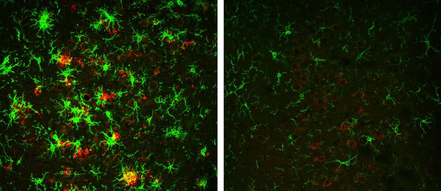 """Nowe nadzieje w poszukiwaniach terapii choroby Alzheimera. Badacze z Cleveland Clinic Lerner Research Institute odkryli metodę, która po raz pierwszy pozwala w mózgu myszy cierpiącej na tę chorobę odwrócić proces tworzenia się charakterystycznych złogów białkowych. Powstawanie owych blaszek beta-amyloidu, które zaburzają precę neuronów uważa się za mozliwą przyczynę towarzyszących chorobie Alzheimera zaburzeń. Jeśli da się ten proces odwrócić, szanse na skuteczną terapię tej nieuleczalnej wciąż choroby znacznie wzrosną. Pisze o tym w najnowszym numerze czasopismo """"Journal of Experimental Medicine""""."""