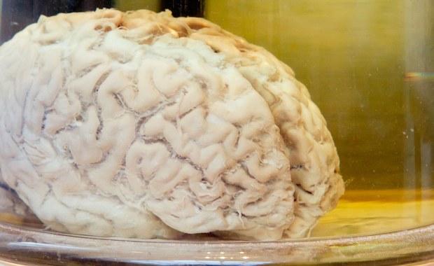 52-latka Amerykanka od kilku lat miała katar. A przynajmniej tak myślała. Kiedy przypadłość się pogorszyła, poszła do specjalistów. Dowiedziała się, że z nosa cieknie jej... płyn mózgowo-rdzeniowy.