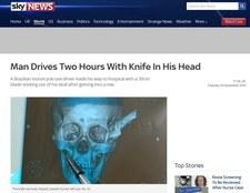 39-latek jechał dwie godziny z nożem wbitym w czaszkę