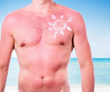 4 sposoby na oparzenia słoneczne