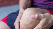 4 sposoby na sprawniejsze kolana