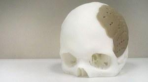75 proc. czaszki zastąpione implantem z drukarki 3D