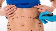 Abdominoplastyka: Sposób na nadmiar skóry brzucha