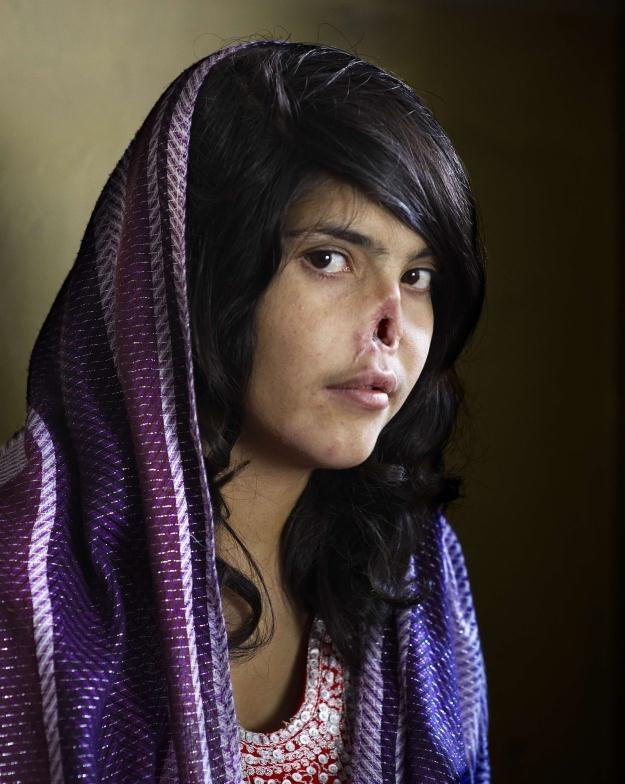 Afganka z nosem obciętym przez męża / fot. Jodi Bieber /AFP