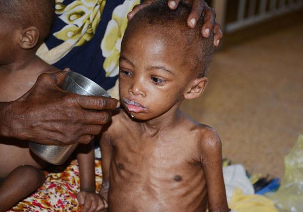 Afryka cierpi na brak żywności fot. Mohamed Abdiwahab /AFP