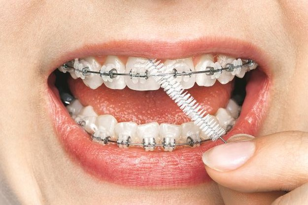 aparat Nosząc aparat ortodontyczny należy pamiętać o czyszczeniu wszystkich zakamarków. /Arch. Bauer
