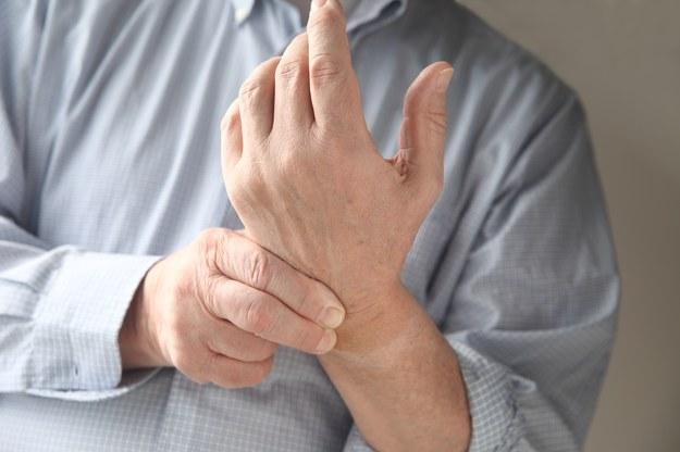 Atak tężyczki charakteryzuje się drętwieniem kończyn /123/RF PICSEL