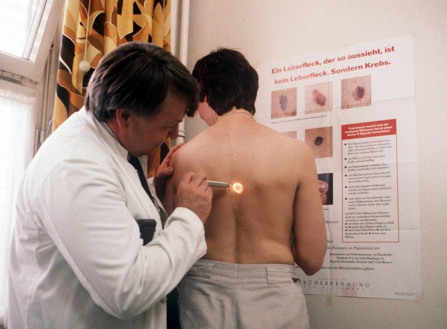 Badanie dermatologiczne /Werner Baum/DPA /PAP