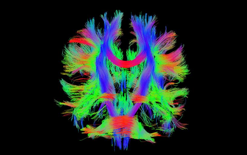Badanie DTI pokazujące integralność włókien nerwowych /materiały prasowe