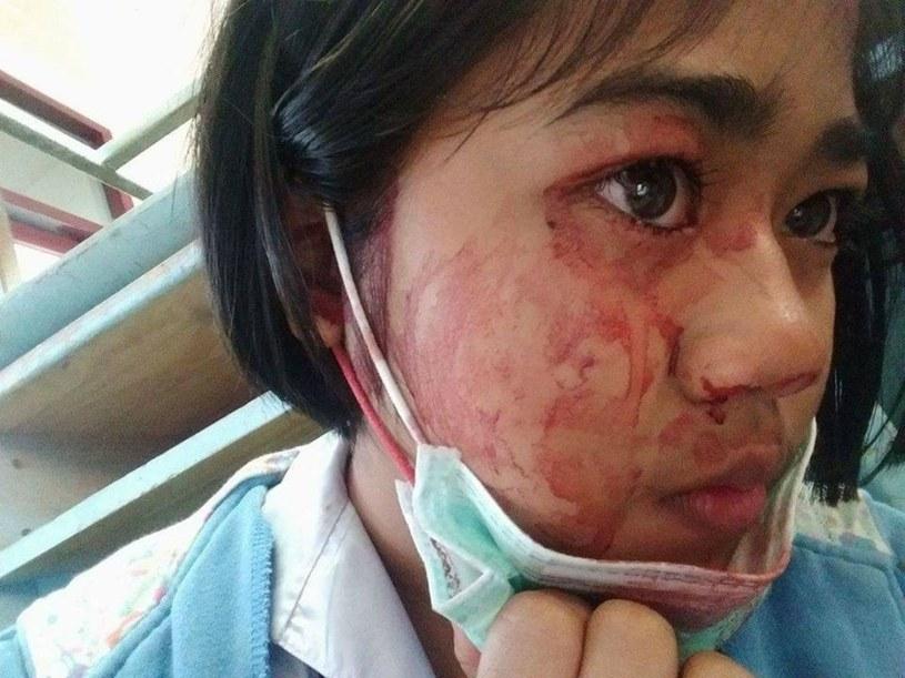 Bardzo podobny przypadek hematohydrozji, jaki wystąpił u 14-latki z Tajlandii. Fot. Exclusivepix Media/East News /East News