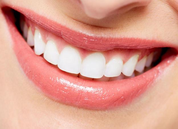 Białe zęby są marzeniem wielu kobiet /123RF/PICSEL