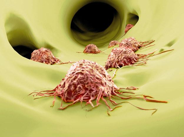 Białko LEM pomoże pokonać nowotwory? /123RF/PICSEL