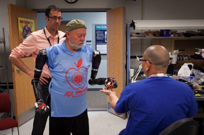 Bioniczne ramiona będą standardem za 5-10 lat /materiały prasowe