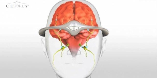 Cefaly - opaska na migrenę /materiały prasowe