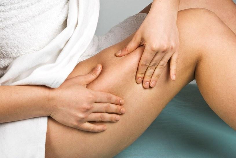Cellulit to zmora wielu kobiet. Na szczęście, są na to sposoby /©123RF/PICSEL