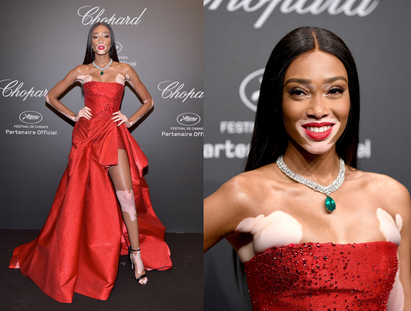 Chantelle Winnie z bielactwa uczyniła swój atut, fot. Pascal Le Segretain / Staff /Getty Images