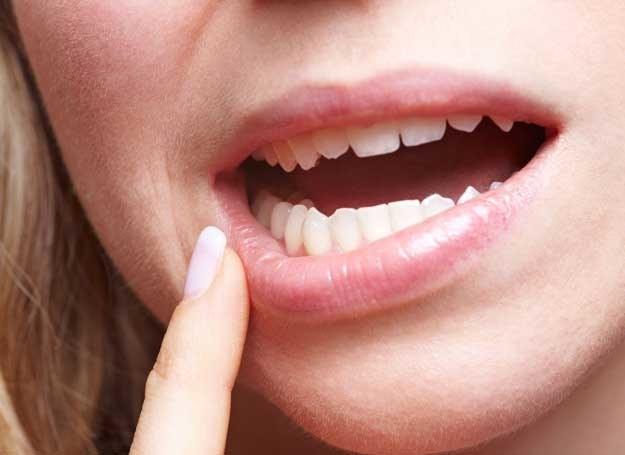 Charakterystyczne pęknięcia w kącikach ust świadczą o stanie zapalnym /123RF/PICSEL