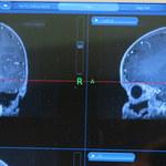 Chirurdzy otworzyli czaszkę niewłaściwemu pacjentowi. Zorientowali się po kilku godzinach