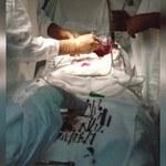 Chirurdzy wydobyli z żołądka kobiety 152 metalowe przedmioty