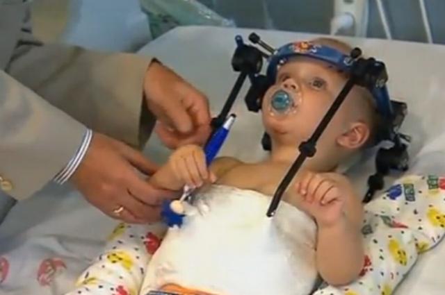 Chłopiec musi mieć przez 8 tygodni unieruchomioną głowę. Kadr z materiału australijskiej telewizji 7 News /YouTube