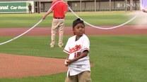 Chłopiec po przeszczepie rąk rozpoczął mecz baseballowy