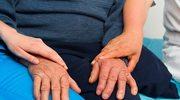 Choroba Parkinsona. Nowoczesne sposoby leczenia