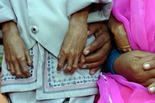 Chorych na progerię dotykają schorzenia charakterystyczne dla wieku geriatrycznego /AFP