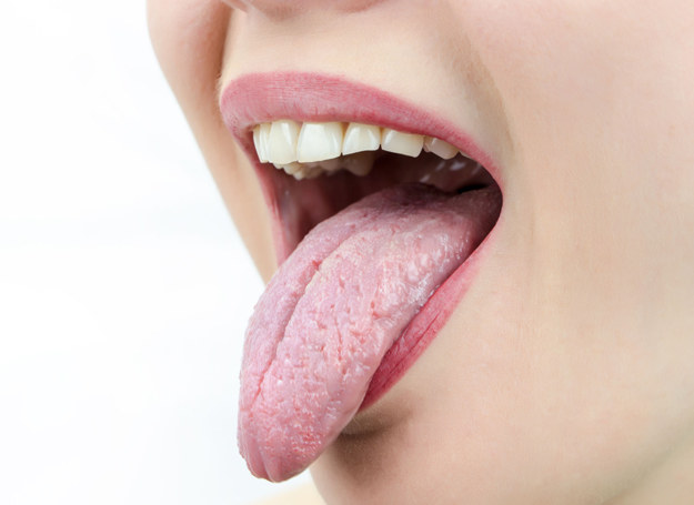 Ciemna czerwień języka i jego ból mogą świadczyć o niedoborze witamin z grupy B /©123RF/PICSEL