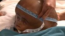 Cierpi na potworne schorzenie! Lekarze dali jej nadzieję