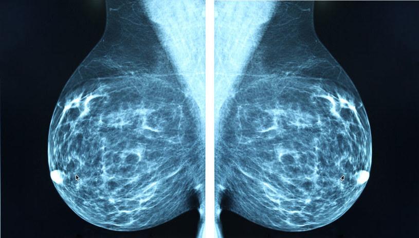 Coraz bliżej pokonania raka piersi? Wystarczy tylko 11 dni! /123RF/PICSEL