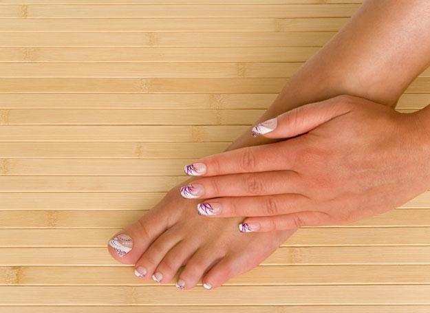 Często pojawiają się na dłoniach, ale mogą też pojawić się np. na stopie /© Panthermedia