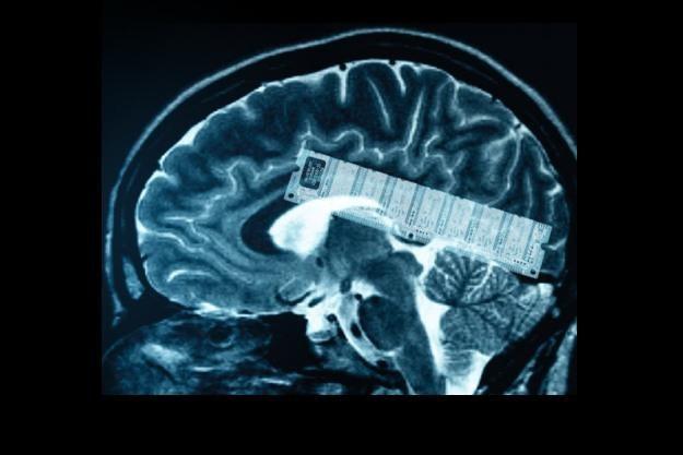 Czy chip pamięci pozwoli pewnego dnia usprawnić ludzkie mózgi? /gizmodo.pl