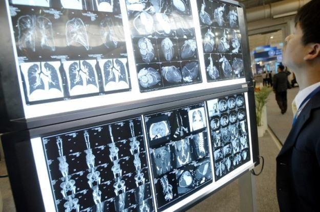 Czy drukarki przestrzenne zrewolucjonizują ortopedię? /AFP