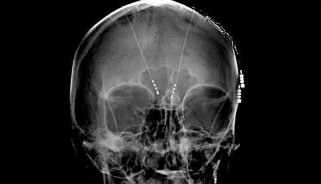 Czy kiedyś implanty w mózgu przywrócą pamięć osobach po udarach i wypadkach? /materiały prasowe