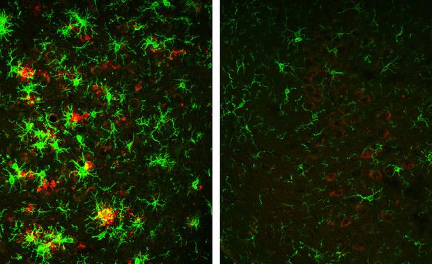 Czy to oczekiwany przełom w leczeniu Alzheimera?