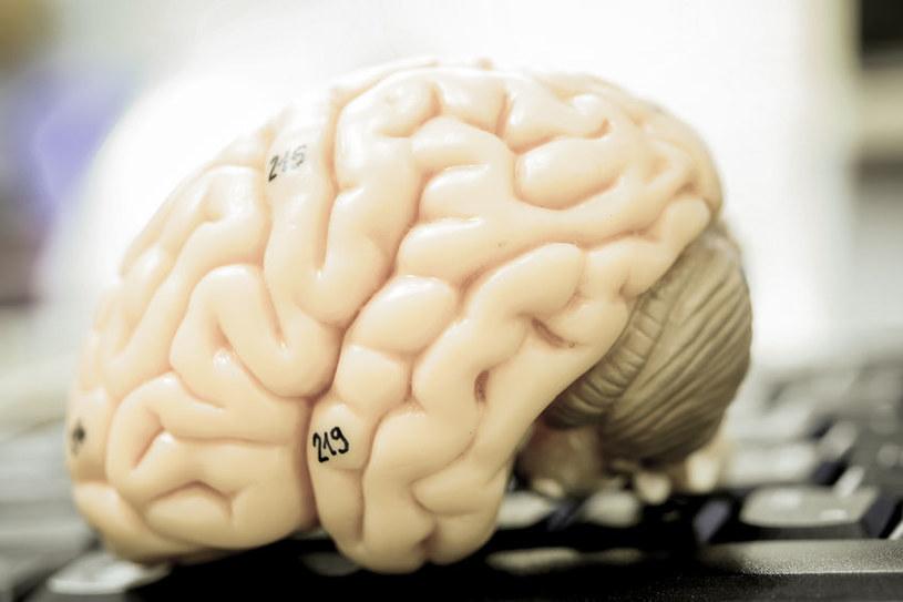 Czy uda się przywrócić do życia martwy mózg? /123RF/PICSEL