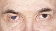 Czym jest katarakta?