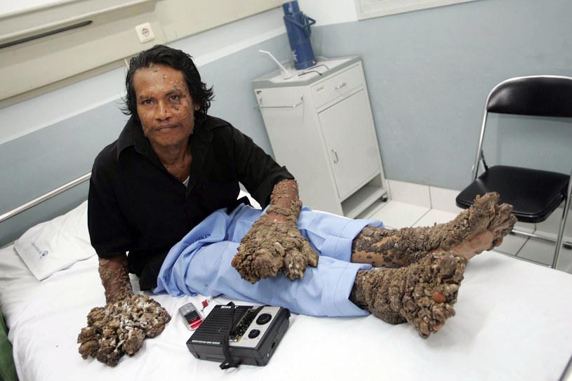 Dede Koswara - jego kończyny przypominają swoim wyglądem zdrewniałe gałęzie /AFP
