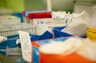 Deficytowy lek dla pacjentów po przeszczepach ma trafić do aptek dopiero w marcu